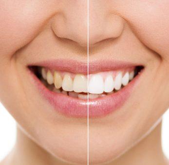 Estética (dentística e clareamento)